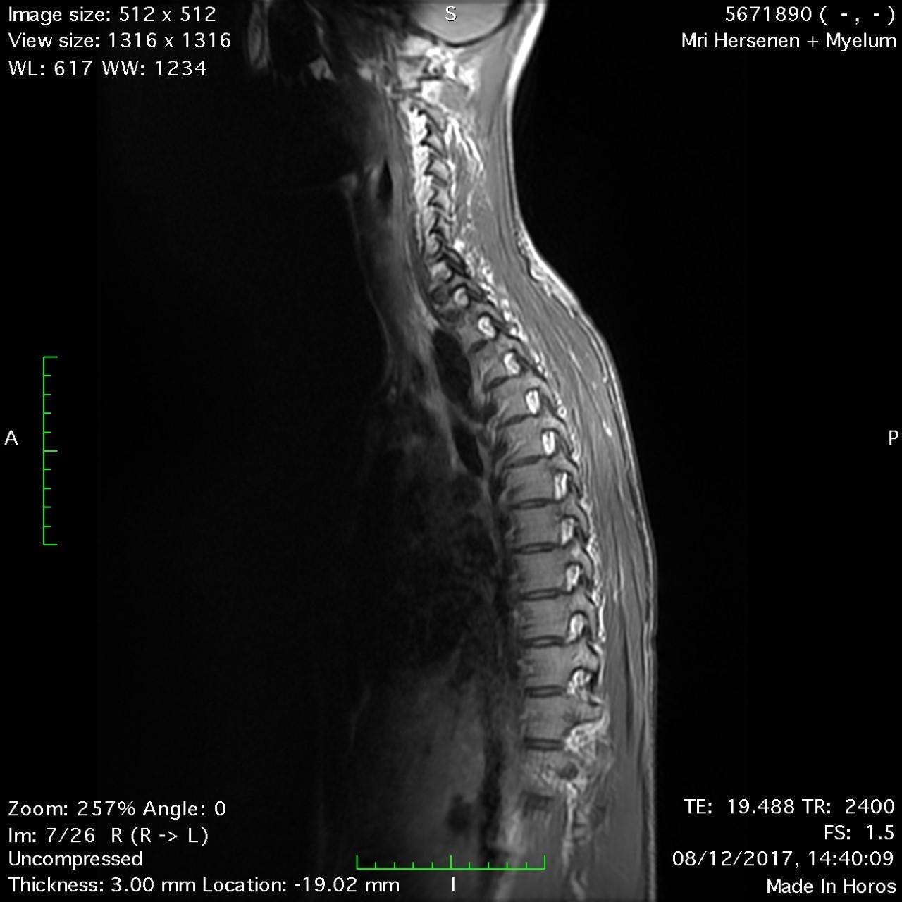 MRI scan spinal column 2017 L. Housden